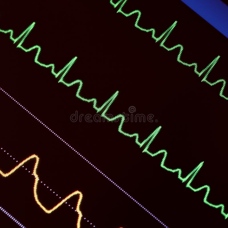 Heart monitoring in emergency care stock photos