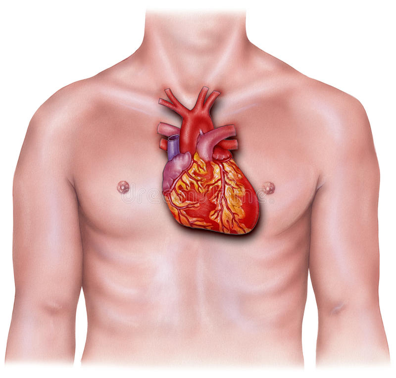 Heart - Overlaid on Male Torso, Inflamed. Heart inflamed overlaid on a male torso stock image