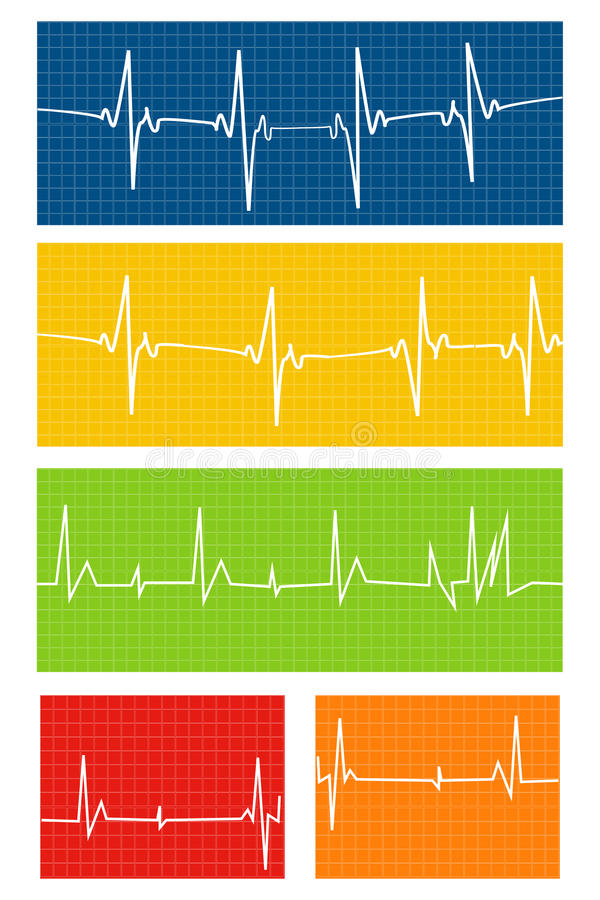 Download Heart rate stock vector. Image of graph, graphic, line - 34693056
