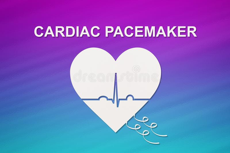 Heart shape with echocardiogram and CARDIAC PACEMAKER text. Cardiology concept. Heart shape with echocardiogram and CARDIAC PACEMAKER text. Medical cardiology stock photography
