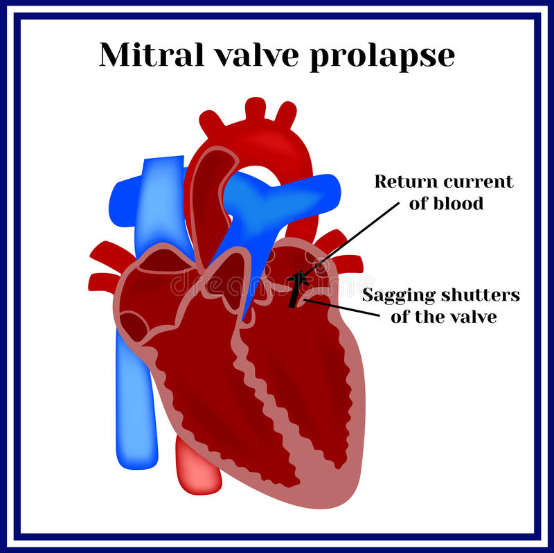 Heart structure. Mitral valve prolapse. Cardiac pathology royalty free illustration