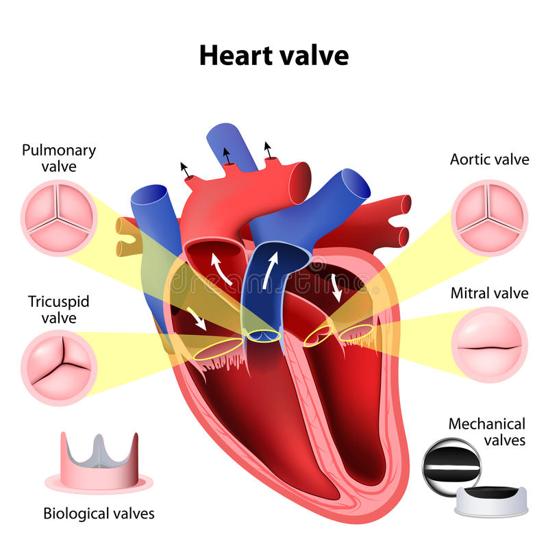 Heart valve surgery stock illustration