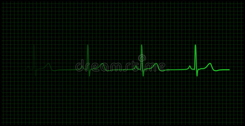 Heartbeat on the monitor vector illustration