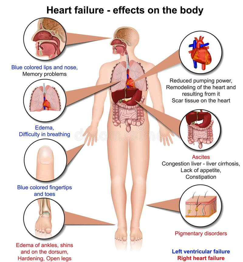 Hearth niepowodzenia skutki ciała 3d medyczna wektorowa ilustracja na białym tle, infographic ilustracji