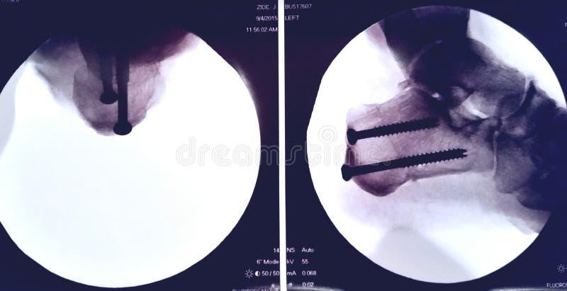Heel bone osteotomy and tendon transfer royalty free stock photos