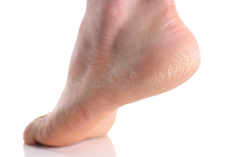 The heel of the foot with bad skin is covered with cracks royalty free stock images