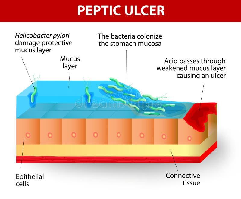 Helicobacter幽门和溃疡疾病 库存例证