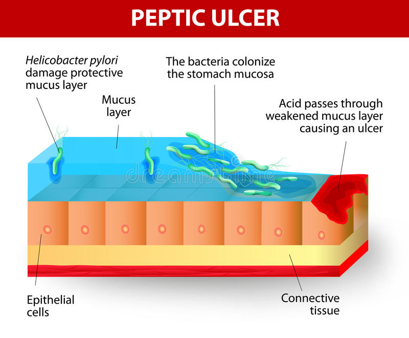 Helicobacter pylori and ulcers disease stock illustration