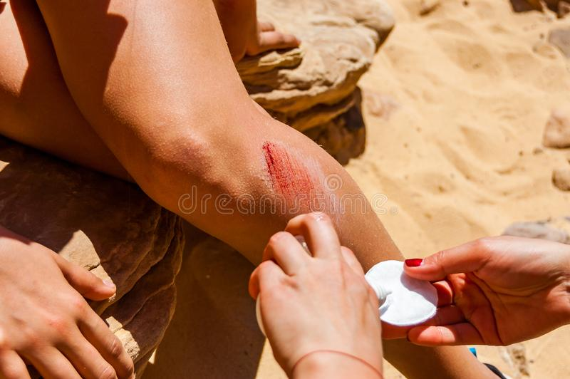 Helping disinfecting the big bleeding scratch injury on the leg during the hiking tour in desert royalty free stock photo