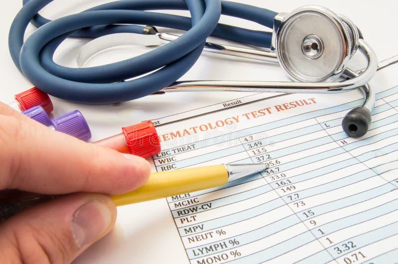 Hematoloog bij de foto van het het werkconcept Hematoloog de arts controleert geduldige bloedanalyse, die op werkplaats dichtbij  royalty-vrije stock afbeelding