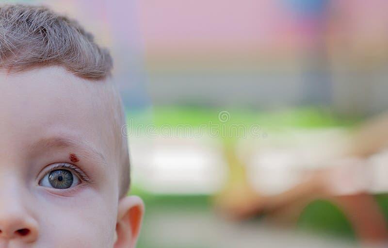 Hematoma en el ojo Contusión en el ojo Contusión de un niño, Primer del concepto del dolor imagen de archivo