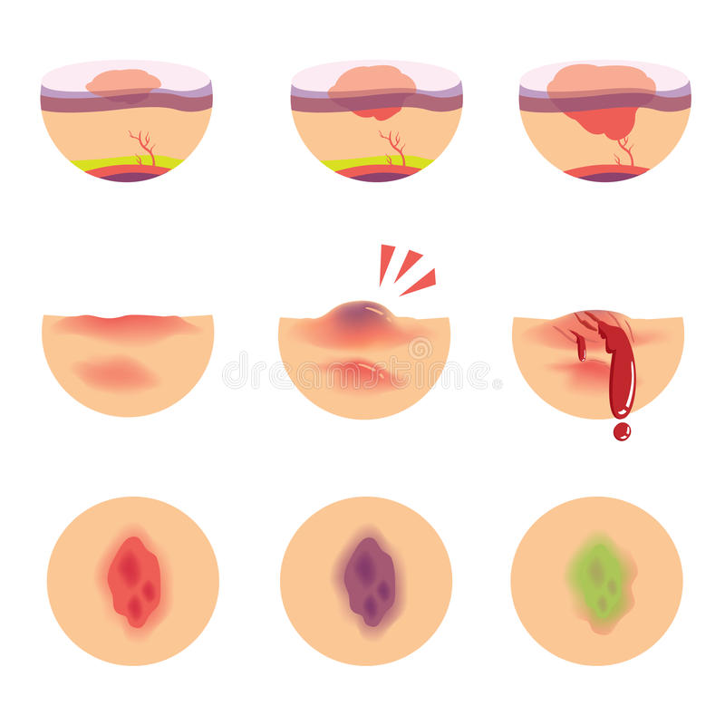 Hematomas stock illustrationer