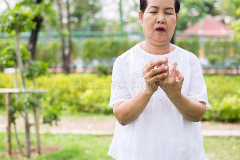 Hembra asiática mayor con beriberi a mano o el finger, enfermedad que causa la inflamación de los nervios fotos de archivo libres de regalías