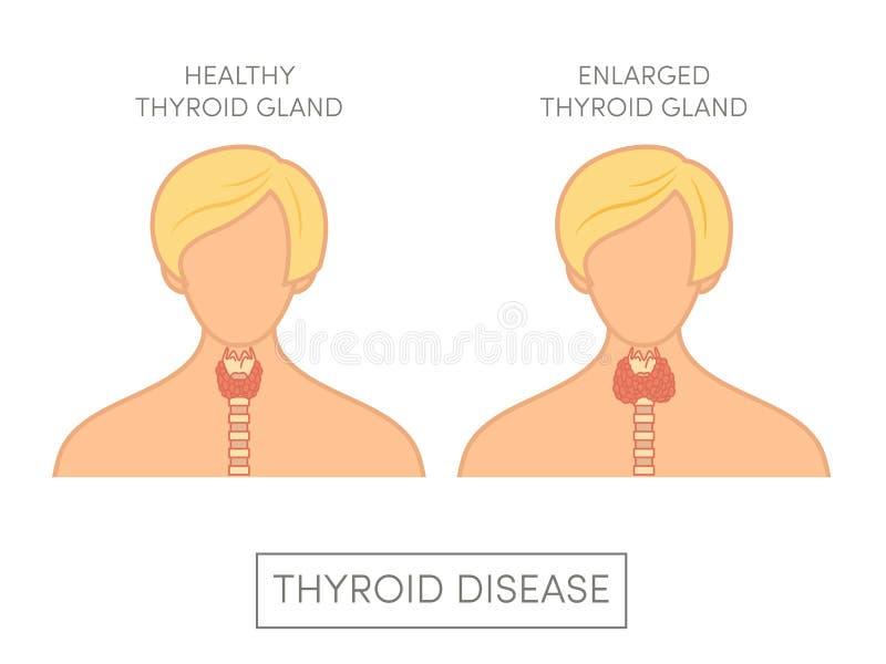 Hembra Con La Glándula Tiroides Normal Y Agrandada Stock de ...