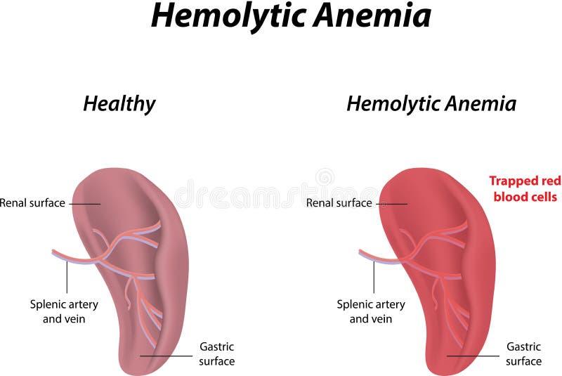 Hemolityczna anemia ilustracja wektor
