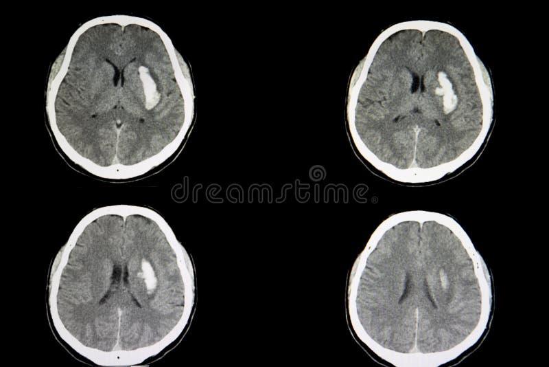 Hemorragia intracerebral de la exploración del CT imágenes de archivo libres de regalías