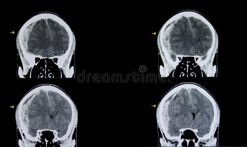 hemorragia subarachnoid do cérebro imagens de stock royalty free