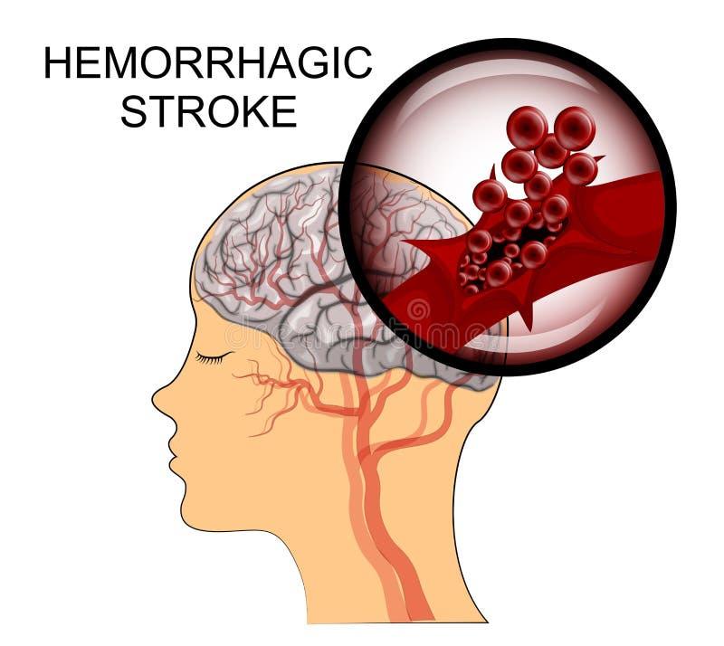 Hemorrhagic slaglängd vektor illustrationer