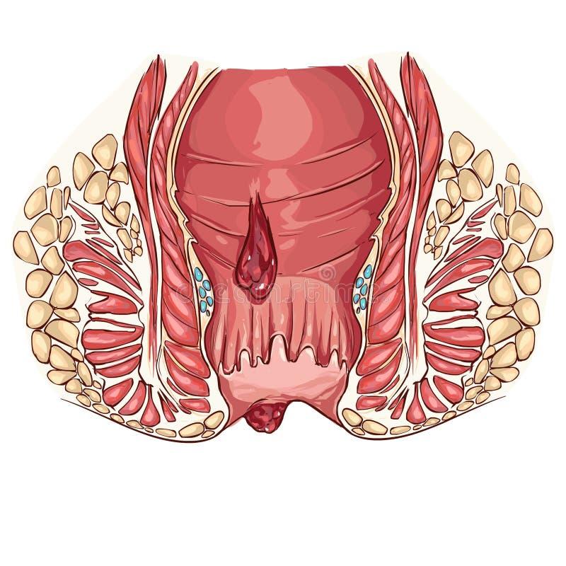 hemorrhoid royaltyfri illustrationer