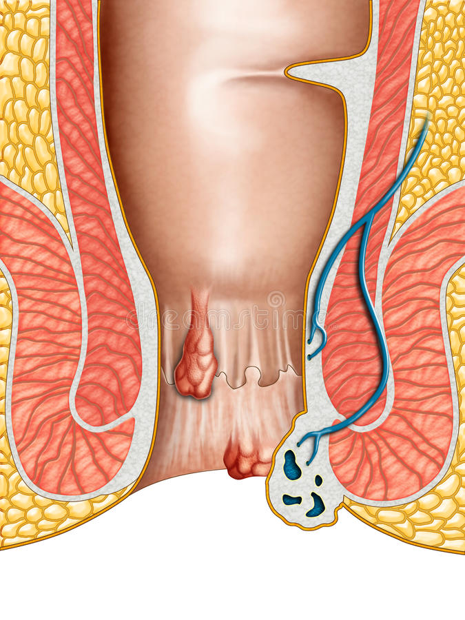 Hemorrhoids vector illustration