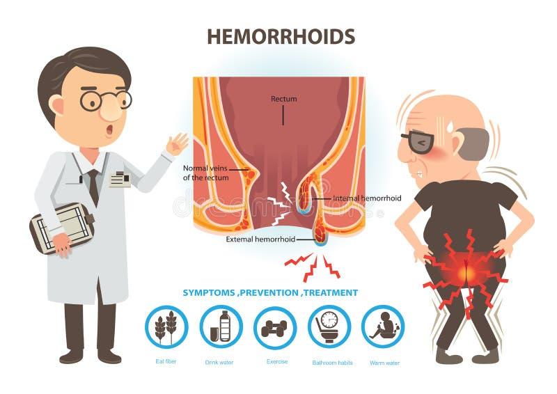 hemorrhoids stock illustratie