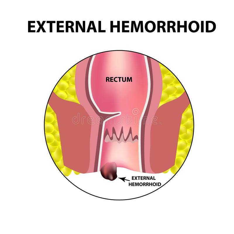 Hemorroides externos Estructura del recto intestinos colon Nodo hemorroidal interno Infografía Ilustración del vector ilustración del vector