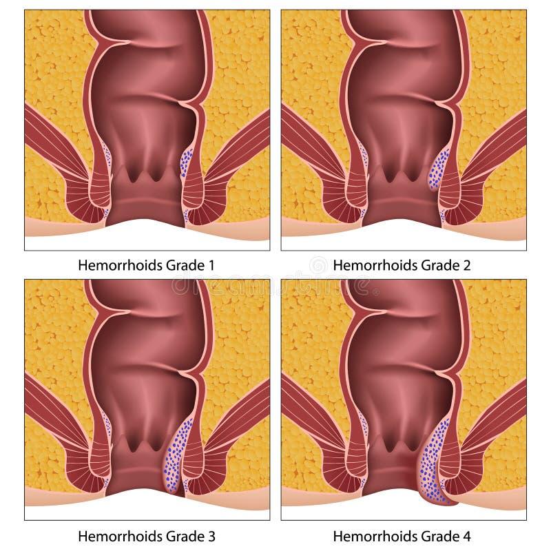 Hemorrojder graderar diagrammet för information om anatomiutbildning på vit bakgrund stock illustrationer