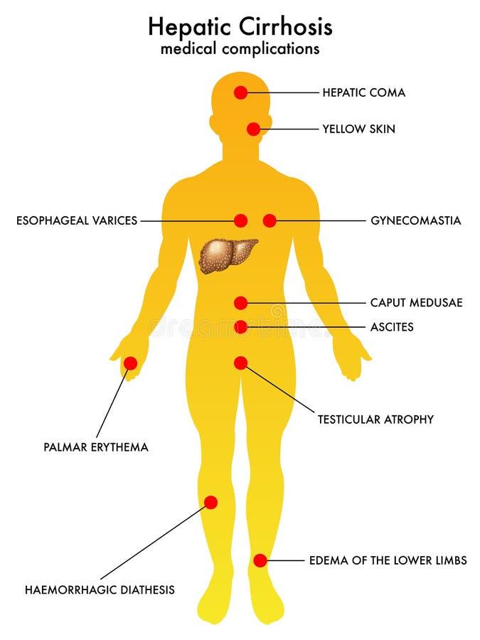 Hepatic cirrhosis. Medical illustration of the effects of hepatic cirrhosis royalty free illustration