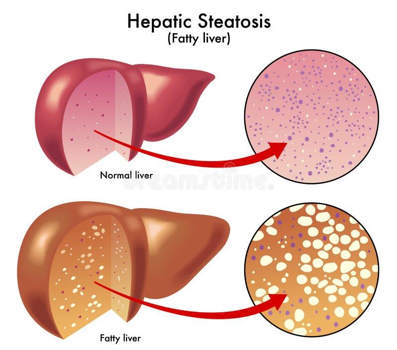 hepatic steatosis stock illustrationer