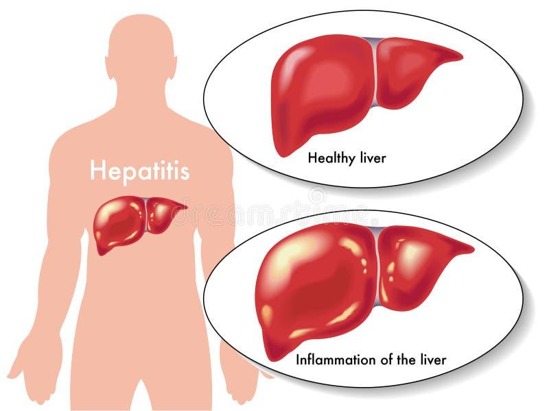 Hepatite ilustração stock