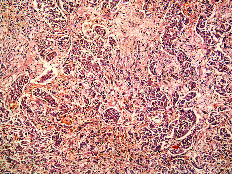 Download Hepatocellular Cancer Of Liver Of A Human Stock Photo - Image: 29670816