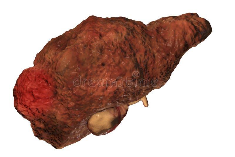 Hepatocellular carcinoom met cirrose royalty-vrije illustratie