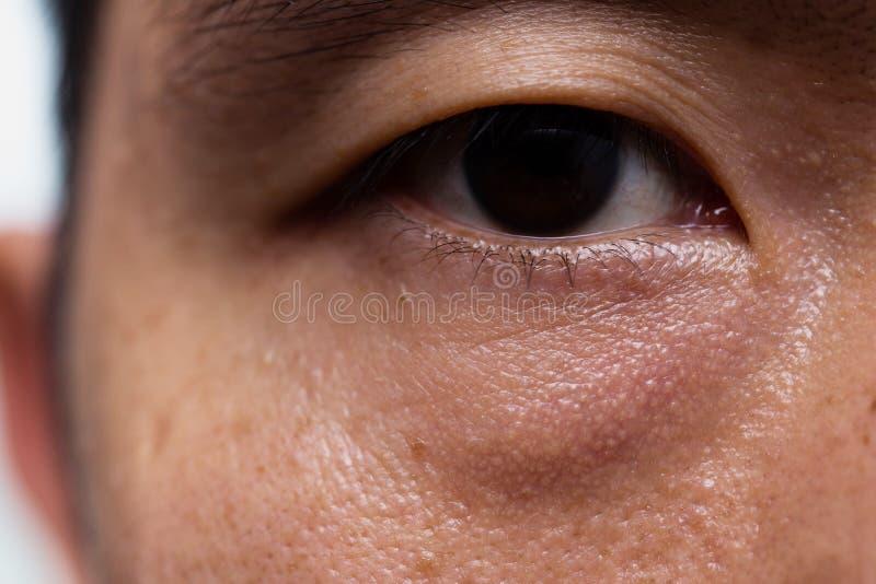 Herabhängendes Augenlid des Ptosis in der asiatischen männlichen öligen Hautart mit Tasche des dunklen Auges lizenzfreie stockfotografie