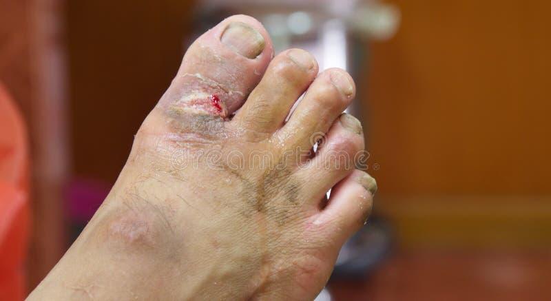 Herida de la gangrena. fotografía de archivo libre de regalías