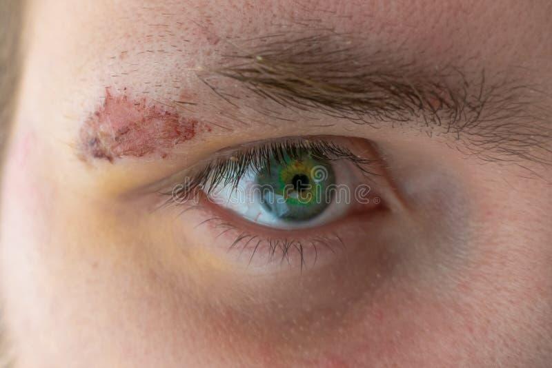 Herida de la sutura en cara del hombre joven, cierre para arriba foto de archivo