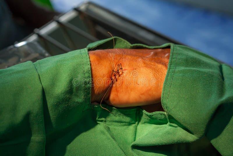 Herida de sutura del hilo imagenes de archivo