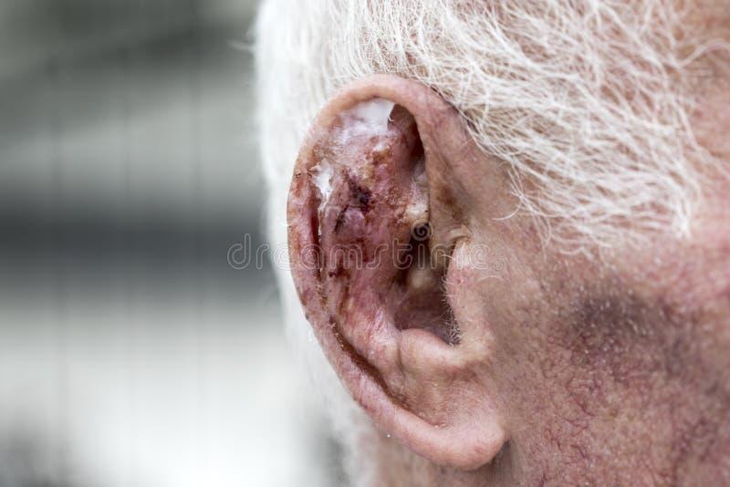 Herida del oído imagen de archivo libre de regalías