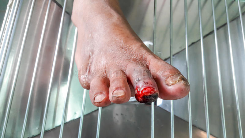 Herida del pie diabético imagenes de archivo