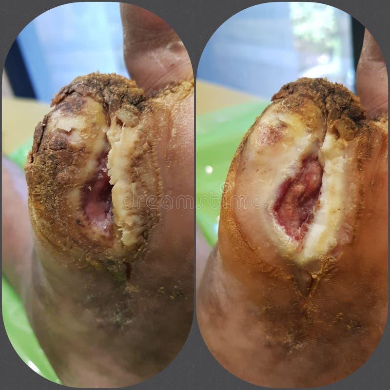Herida diabética imagen de archivo