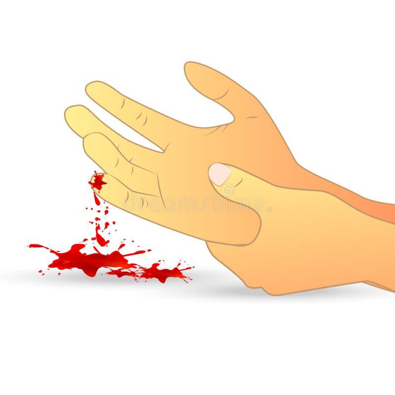 Herida en el ejemplo de la mano ilustración del vector