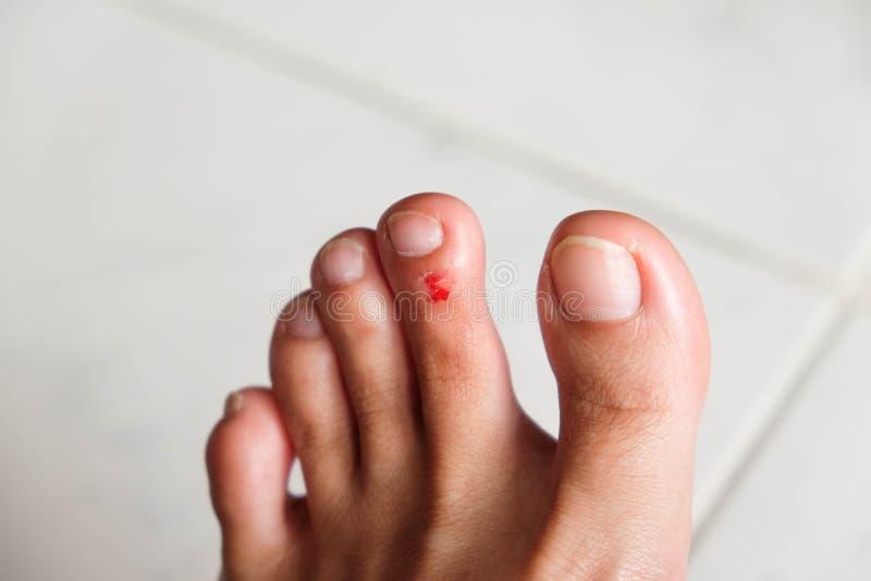 Herida en el pie de una mujer fotografía de archivo