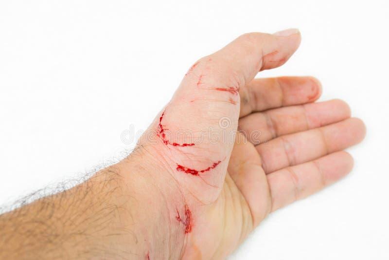Herida fresca y sangre fotos de archivo