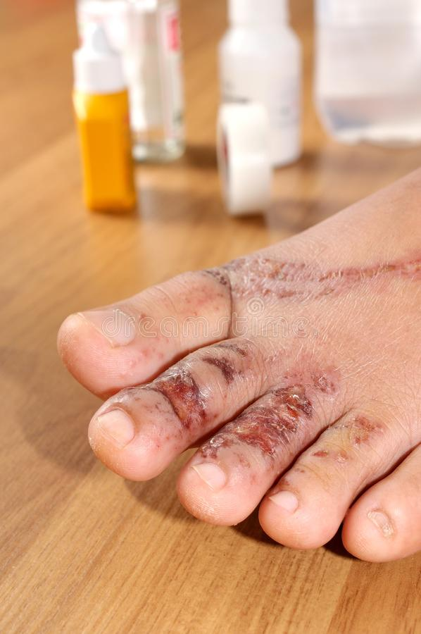 Heridas en pie de las mujeres fotos de archivo libres de regalías