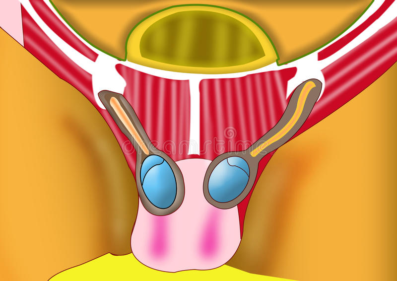 Hernia ilustración del vector