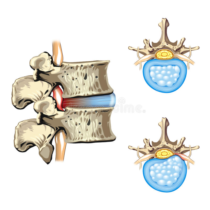 HERNIA OF THE DISC - SLIPPED DISC royalty free illustration