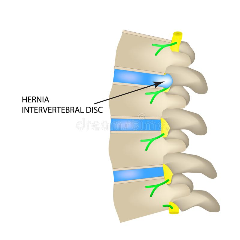 A hernia of the intervertebral disc. Vector illustration on isolated background. A hernia of the intervertebral disc. Vector illustration on isolated background royalty free illustration