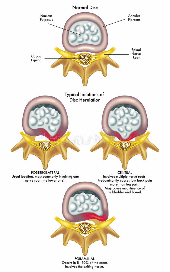 Herniated disc royalty free illustration