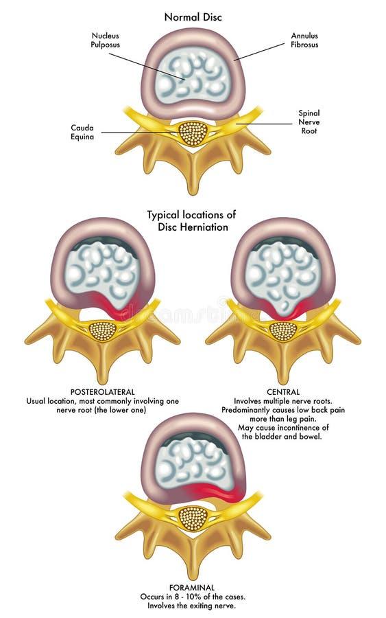 Herniated dysk royalty ilustracja