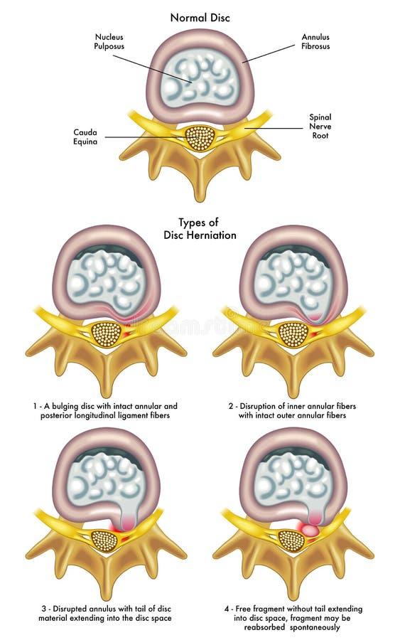 Herniated schijf vector illustratie
