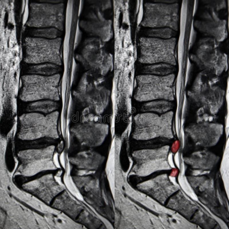Herniation do disco, espinha lombar MRI imagem de stock